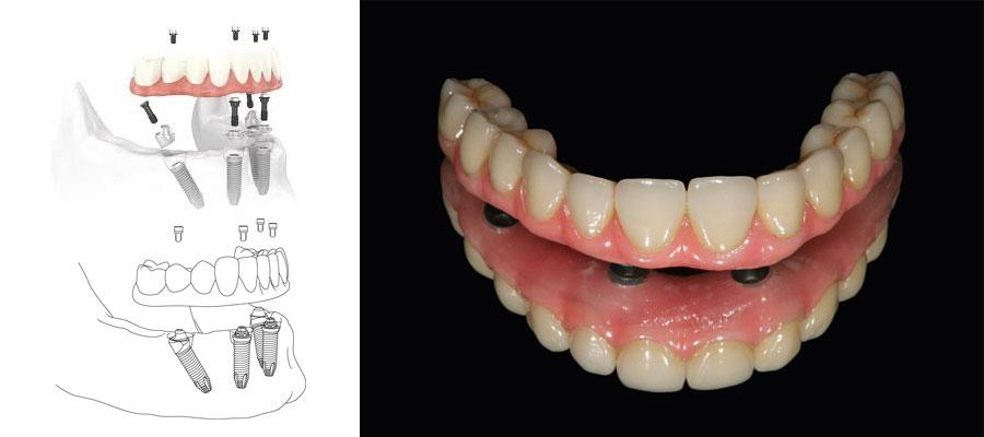 All On Four Full Dental Implant