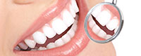 Dental Implant Maintenance Perth