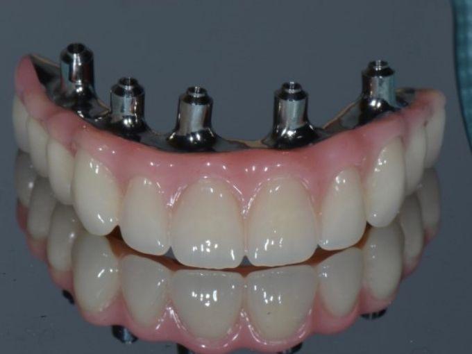PDIC-Full-Mouth-Implants-Acrylic-bridge