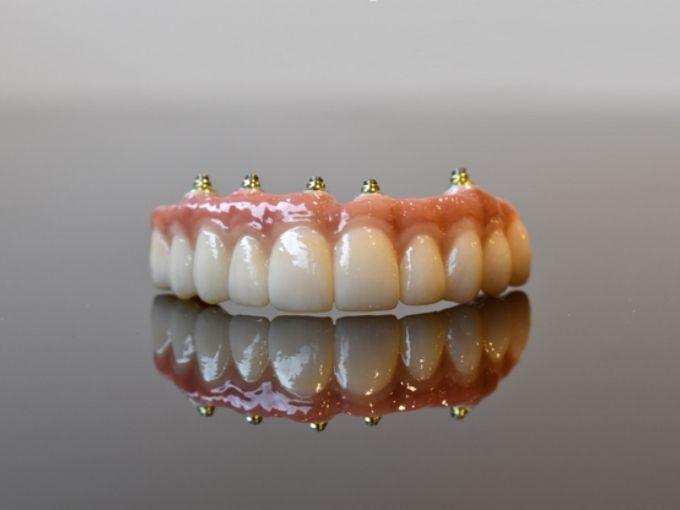 PDIC-Full-Mouth-Implants-Zirconia-bridge