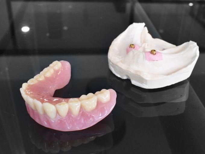 PDIC-Lower-Implant-Retained-Denture