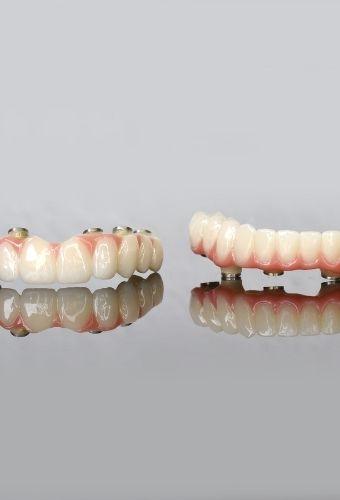 Full Mouth Bridge | All-On-4®