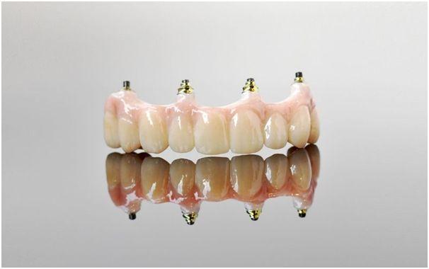 Choosing a Fixed Implant Bridge