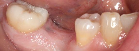 Single Dental Implant (Molar)