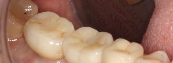 Two Dental Implants